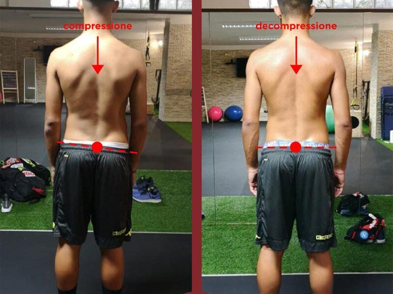 lombalgia e postura