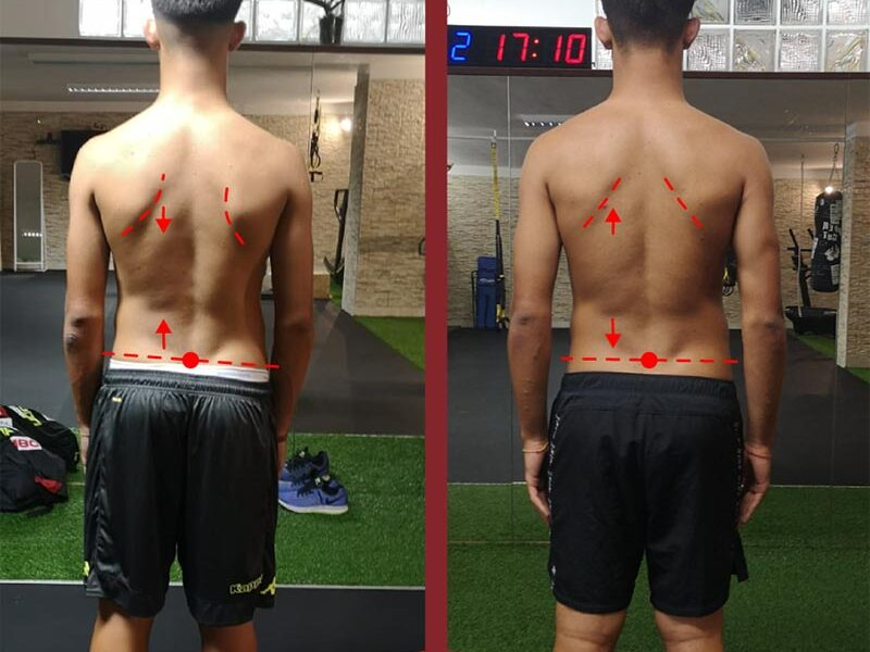 lombalgia mal di schiena
